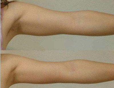 兰州韩美整形美容医院手臂吸脂术的术前准备