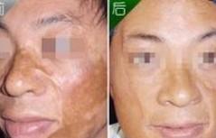 兰州崔大夫医疗美容诊所激光疤痕修复术的术前注意事项