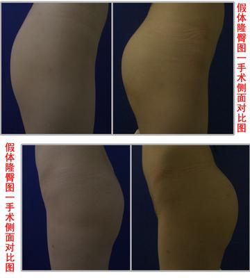 兰州崔大夫医疗美容诊所自体脂肪丰臀术的术后注意事项