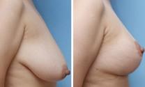 兰州芦蔓莉美医疗美容乳房下垂矫正的术前注意事项