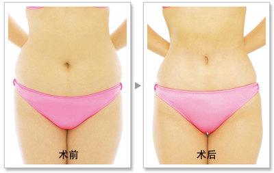 昆明市中医医院整形美容科腰部吸脂术的注意事项