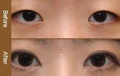 兰州长青佳黛医疗美容内眼角开大的术后护理