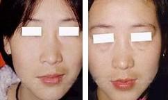 兰州韩式祛眼袋的对比图