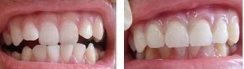 兰州芦蔓莉美医疗美容隐形牙齿矫正的术后护理