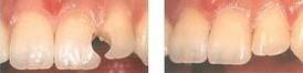兰州芦蔓莉美医疗美容补牙的适应人群