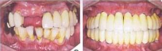 兰州芦蔓莉美医疗美容种植牙的术前准备