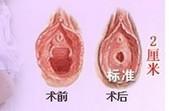 兰州崔大夫医疗美容诊所阴道紧缩术的效果