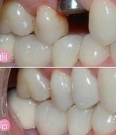 昆明市中医医院整形美容科种植牙的术后护理