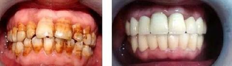 昆明市中医医院整形美容科冷光牙齿美白的缺点
