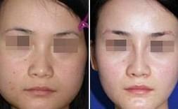 昆明市中医医院整形美容科下颌角整形手术的术后护理