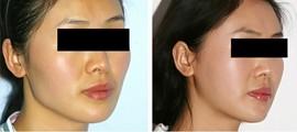 兰州芦蔓莉美医疗美容下颌角整形的适用人群