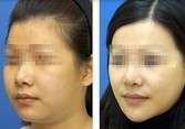 兰州芦蔓莉美医疗美容改脸型的优势