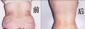 兰州长青佳黛医疗美容腰部吸脂的术后护理