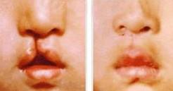 兰州唇裂畸形修复的对比图