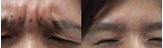 兰州崔大夫医疗美容诊所激光去川字纹的术前注意事项