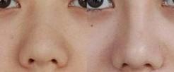 兰州长青佳黛医疗美容假体隆鼻的适用人群