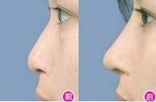 兰州长青佳黛医疗美容鼻尖整形的恢复时间