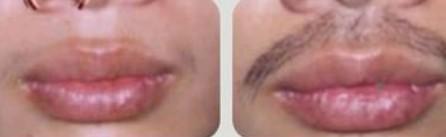 兰州宝黛美容诊所胡须种植手术流程的具体情况