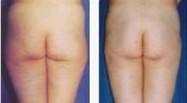 兰州芦蔓莉美医疗美容臀部吸脂的适用人群