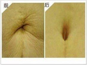 兰州崔大夫医疗美容诊所脐部整形术的恢复时间