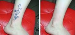 兰州长青佳黛医疗美容激光洗纹身的适用人群