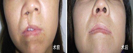 昆明市中医医院整形美容科唇裂修复术的效果