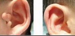 兰州芦蔓莉美医疗美容副耳切除的术前注意事项