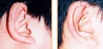 兰州芦蔓莉美医疗美容杯状耳矫正的适应症