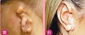 兰州芦蔓莉美医疗美容隐耳整形的恢复时间