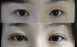 昆明盘龙区中医院双眼皮切开法有哪些方式