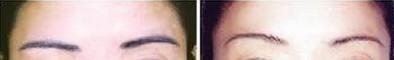 昆明盘龙区中医院切眉术的过程是个什么情况