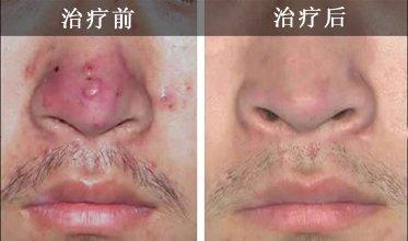 兰州崔大夫医疗美容诊所酒糟鼻整形术的注意事项