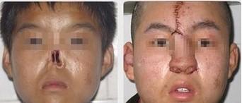 兰州崔大夫医疗美容诊所全鼻再造术的注意事项