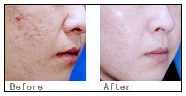 兰州崔大夫医疗美容诊所激光收缩毛孔的适应症