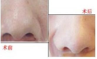 昆明杨穗医疗美容机构鼻孔缩小手术的术前准备