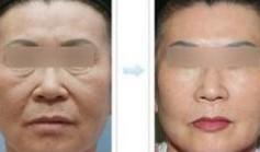 兰州长青佳黛医疗美容小切口除皱的优势