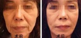 兰州长青佳黛医疗美容肉毒素除皱的术后护理