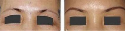 昆明盘龙区中医院提眉术可能会出现哪些并发症