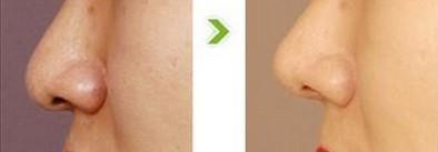 昆明盘龙区中医院硅胶隆鼻有什么安全性可言