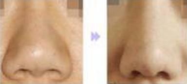 如何进行准备昆明盘龙区中医院鼻小柱延长术