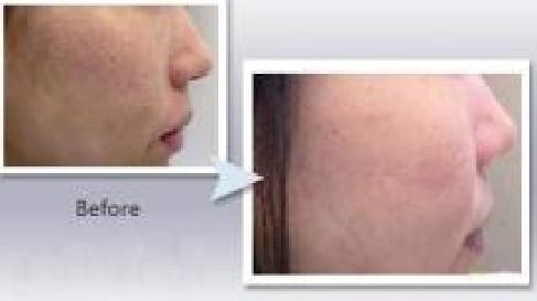 兰州崔大夫医疗美容诊所彩光嫩肤的危害