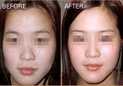 兰州崔大夫医疗美容诊所光子嫩肤的适应症