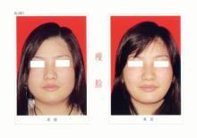 昆明市中医医院整形美容科瘦脸针的效果