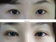 兰州芦蔓莉美医疗美容韩式三点法双眼皮的恢复时间