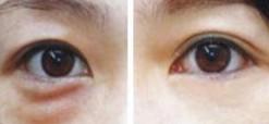 兰州芦蔓莉美医疗美容激光去眼袋的术前注意事项
