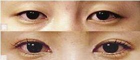 兰州芦蔓莉美医疗美容开内眼角的适应症
