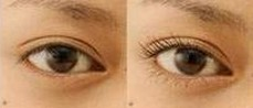 兰州睫毛种植的对比图