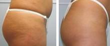 兰州芦蔓莉美医疗美容激光除皱的术前准备