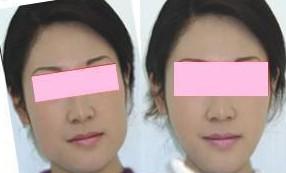 昆明盘龙区中医院取颊脂垫术的肿胀期多久