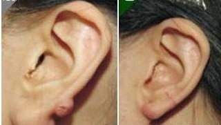 兰州宝黛美容诊所耳垂畸形修复的一些保养
